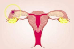 Ectopic Pregnancy | Symptoms and Treatment