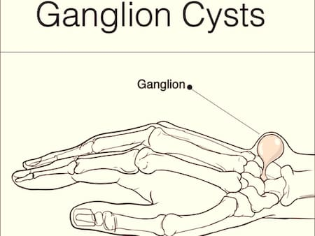 ganglion cyst back of hand