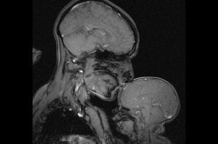 Beautiful MRI Captures The Bond Between A Mother & Baby