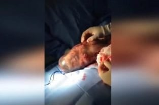 Amazing Video Shows Baby Born In Amniotic Sac